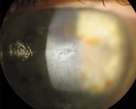 Acuity Laser Eye epi defect
